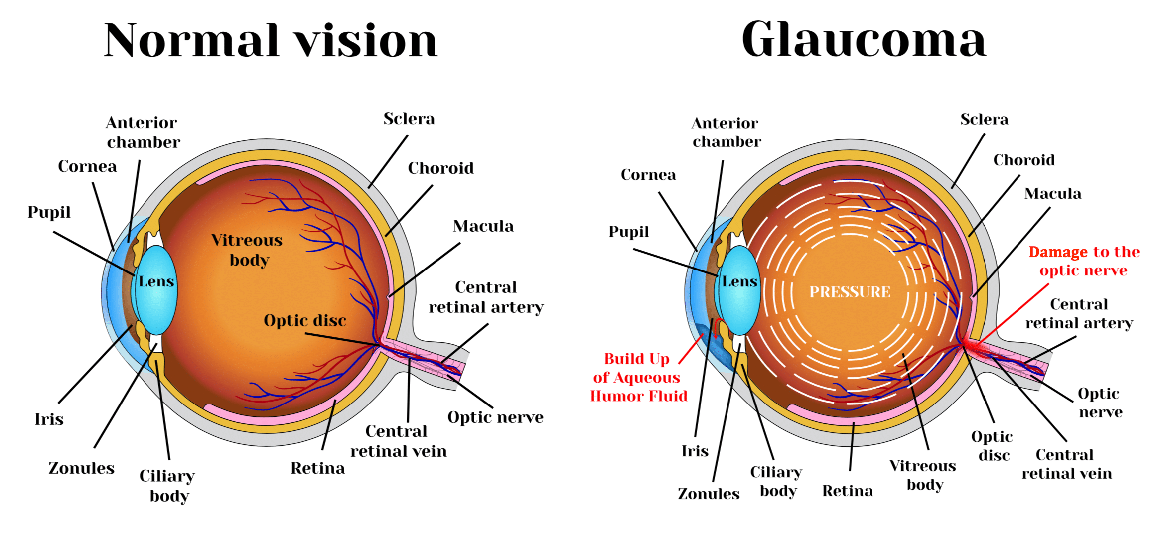 Low vision awareness month; Glaucoma.